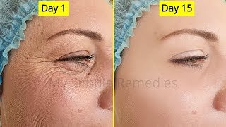 Japanese Secret To Look 10 Years Younger Than Your Age, Antiaging remedy, Remove Wrinkes & Acne