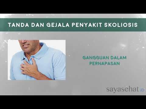 Scoliosis congenito della causa
