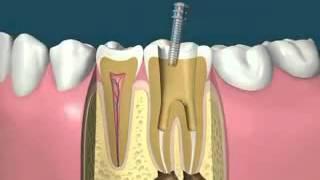 Vídeo 3 - Betaginn, Clínica Dental Familiar