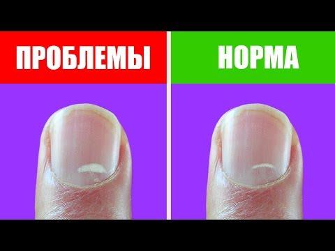 Болезни ногтей. Белые пятна и полоски на ногтях