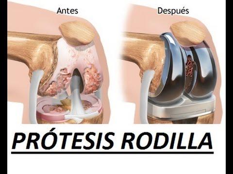 El fluido en las articulaciones tratadas