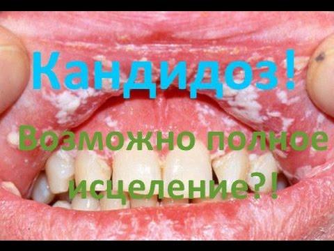Кандидоз - причины, симптомы и лечение