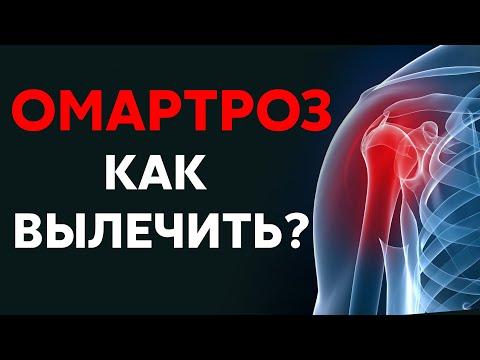 Артроз плечевого сустава - как вылечить?