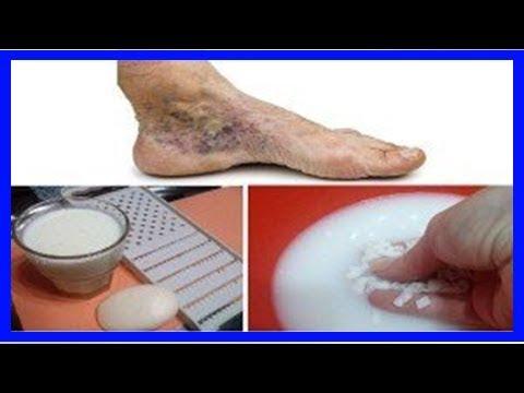Un bon moyen au traitement de la varicosité