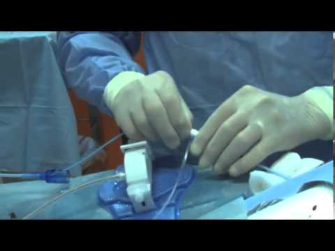 Elenco dei farmaci per il trattamento della prostatite