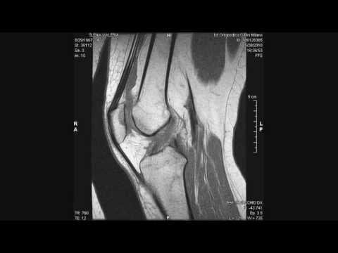 Reattiva artrite caviglia