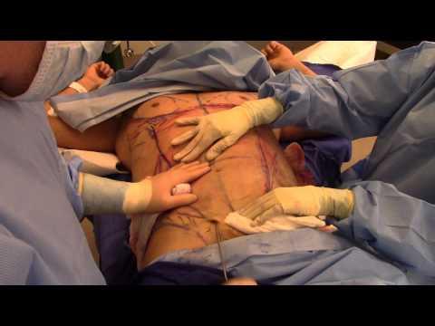 Chin and Jawline Surgery