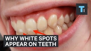 Here's why some people have white spots on their teeth