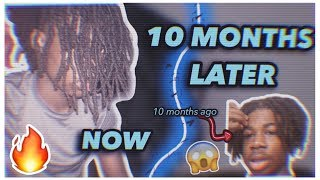How My Freeform Dreads Grew 7 inches in 10 Months...😱
