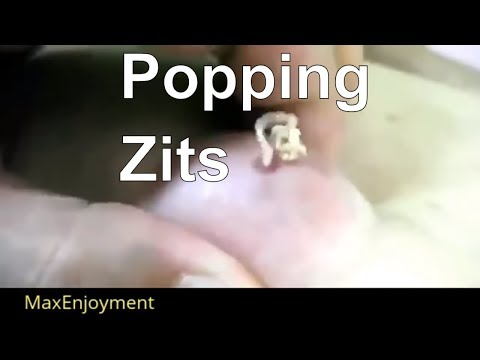 Nice Compilation Of Pimple Popping