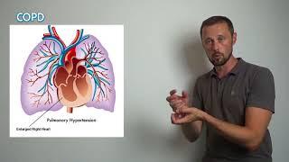 Zuschauerfrage: Was ist der Unterschied zwischen COPD und Asthma?