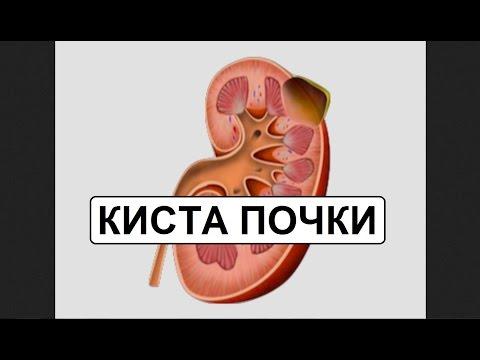 Новое в лечении гепатита с в беларуси