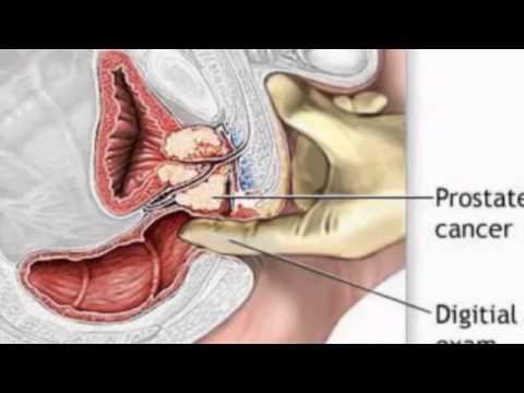 Erotische Massage in der Prostata