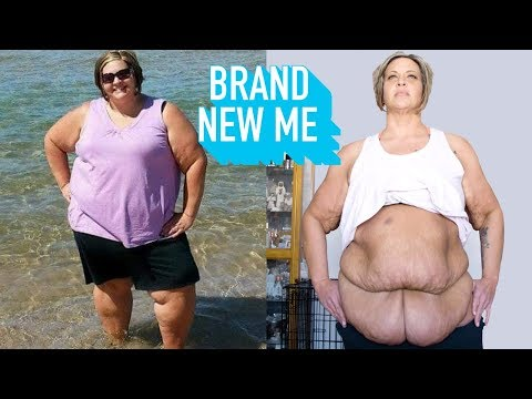I Lost 188lbs – Now I'm Losing My Excess Skin | BRAND NEW ME