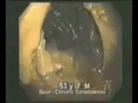 Video usus penuh toksin dan cacing atasi dengan fiforlif