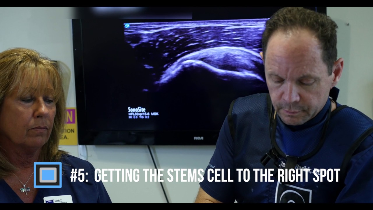 The Top 8 Things To Know About Orthopedic Stem Cell Treatment