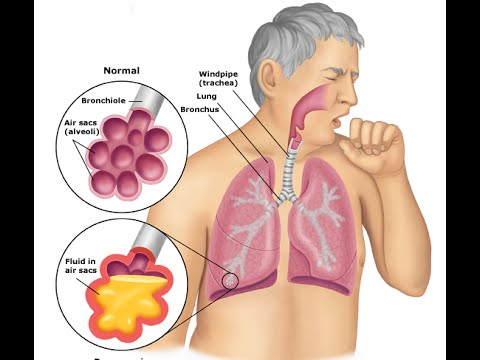 Video Bacterial Pneumonia: Symptoms & Treatment