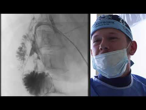 Наружно-внутреннее дренирование желчных протоков и 12-перстной кишки по поводу желчного свища