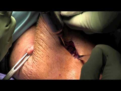 Rekonstrukcja zerwanego przyczepu dalszego ścięgna mięśnia dwugłowego ramienia