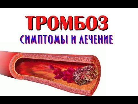 Тромбоз. симптомы и лечение