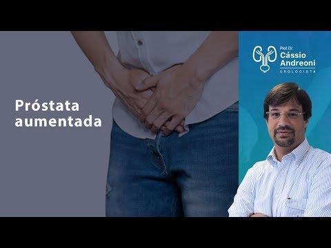 Sia trattati con la radioterapia del cancro alla prostata