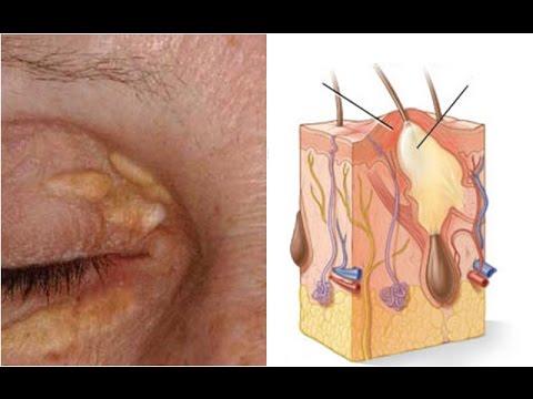 วิตามิน thrombophlebitis