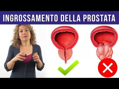 Prostata massaggio g porno