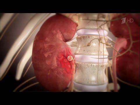 Онкология предстательной железы. ее симптомы