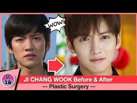 💬 Ji Chang Wook Before and After Plastic Surgery [NETIZEN BUZZ]