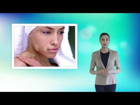 Perché ci sono posti di pigmentary su una faccia alla donna