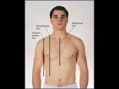 ฮอร์โมน การเสริมเต้านม