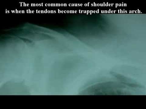 What is Rotator Cuff? What is shoulder injury?