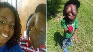 Boy who has Giant Face Tumor is called a 'Monster' by bullies who think he is wearing Mask