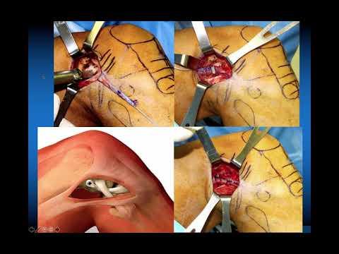Artroza coxartrozei articulațiilor șoldului