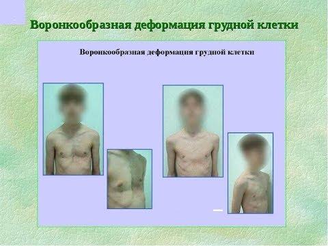 Деформация грудной клетки у детей. Воронкообразная грудная клетка. Остеопатическое лечение.