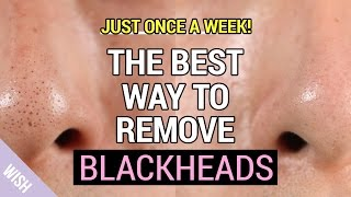 Ultimate Blackhead Removal & Preventing Tips | How to Remove Blackheads Properly