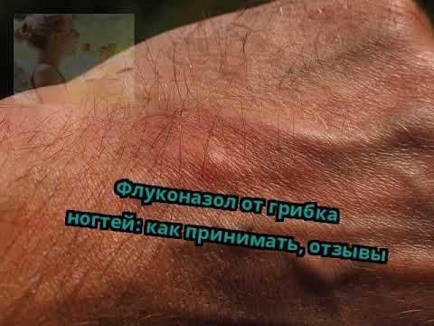 Die ergebnisreichsten Salben von gribka auf den Händen