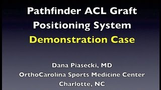 Pathfinder ACL Graft Positioning System - Demonstration Case