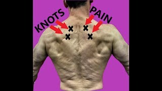 Rhomboid Pain Relief - Fascial Release and Exercises