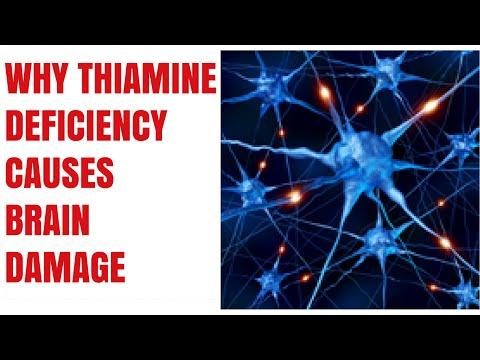 Delirium tremens metodi nazionali di trattamento
