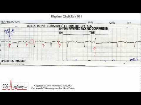 ECG Interpretation, Basic Level - Part 11