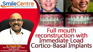 Full mouth reconstruction with Immediate Load Cortico-Basal Implants - Video