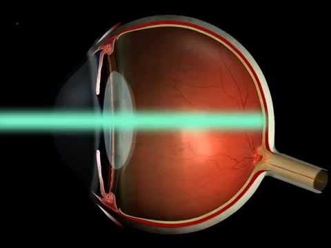 Золотой ус восстановления зрения