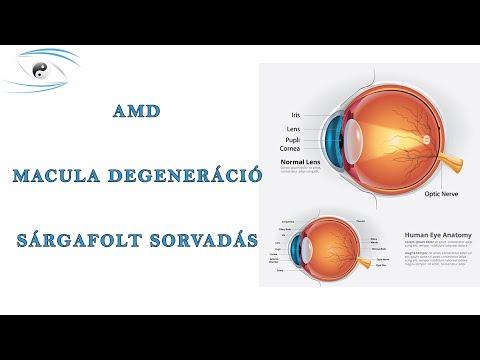 Hogyan lehet kialakítani a perifériás látást