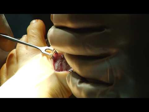 ЧАСТЬ 1 Операция Вальгусная деформация стопы. Правая нога.