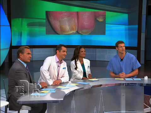 The Doctors on laser toenail fungus