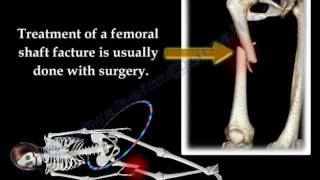 Fracture of the  Femur and  its  fixation - Everything You Need To Know - Dr. Nabil Ebraheim