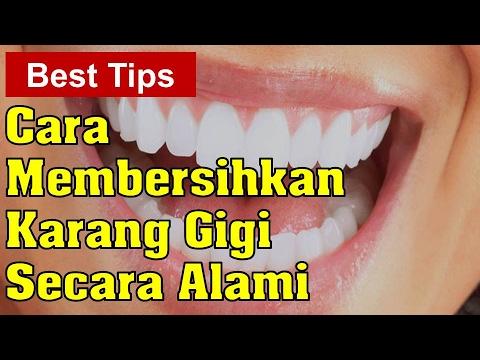 Cara Membersihkan Karang Gigi Secara Alami berapa banyak kilogram untuk menurunkan  berat badan perlu kehilangan satu ukuran d1f829dc1d