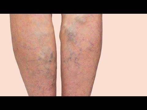 Варикозное расширение вен: фото на ногах, симптомы, начальная стадия у мужчин и женщин