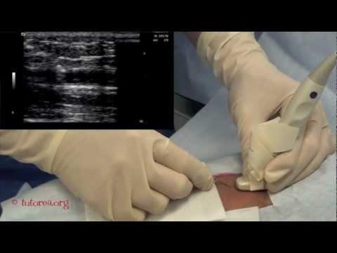 La récupération de lhypertension portale